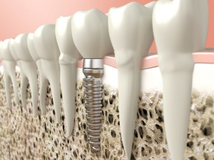 Our Gainesville, FL area patients know that the dental implant process can leave them with beautiful replacement teeth.