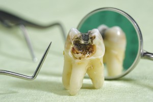 Our Gainesville, FL area patients know the consequences of failing to replace missing teeth.