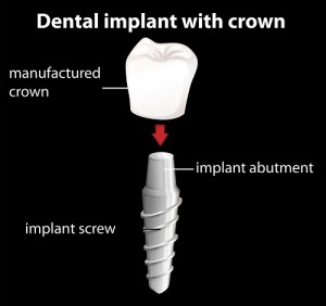 Our Gainesville, FL area patients know that each piece of a dental implant works together to provide the best possible replacement teeth.