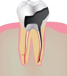 Our Gainesville, FL area patients know that the damage done by tooth decay can be reversed using dental implants.