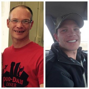 Our Gainesville, FL area patients can achieve a smile makeover with dental implants just like Brian Maixner did.